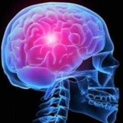 Scoperto un nuovo fattore di rischio genetico per l'ictus cerebrale