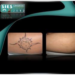 Rimozione tatuaggio:boom pentiti tattoo con lo stop dell'Esercito