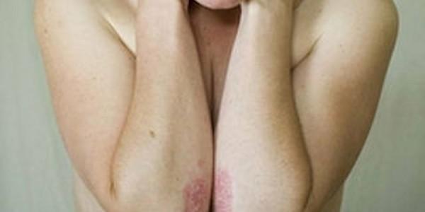 La psoriasi è una malattia della pelle, ad andamento cronico e recidivante...