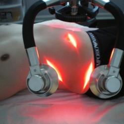 Zerona, il laser freddo e a bassa potenza (che significa, non invasivo e non doloroso)