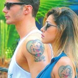 Rimozione Tatuaggio Laser Resistente
