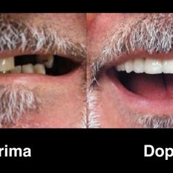 Turismo e Odontoiatria in Croazia