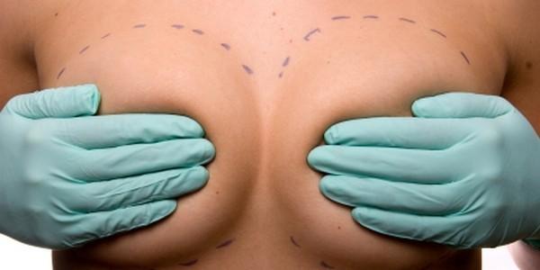 Mastoplastica additiva (aumento seno)
