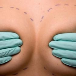B-lite, le protesi mammarie di ultima generazione che diventano leggere