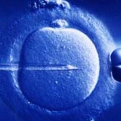 L'infertilità è definita come l'incapacità di raggiungere una gravidanza  solo dopo 1 anno di rapporti