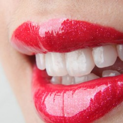 Focus On sull'estetica dentale: cosa sono le faccette estetiche dentali